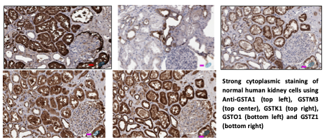 IHC of GSTs in Human Kidney